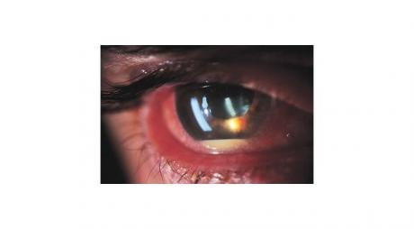 Iridocyclitis with hypopyon and red eye