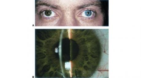 Iris Heterochromia. A- Heterochromia in patients with siderosis bulbi. B- Brownish discoloration of anterior lens capsule and lens due to deposition