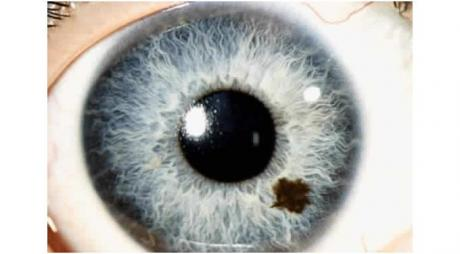 Iris Nevus is a benign brown pigmented area over the iris which can be either flat or slightly elevated area