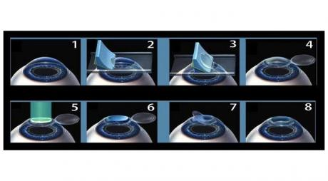 Lasik Procedure. Steps of Lasik Eye Surgery