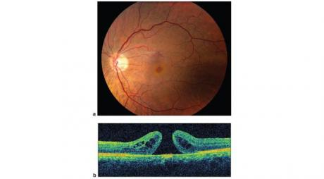 Treatment of Macular Hole. A- Macular Hole. Fundus Picture of the retina with macular hole. B- OCT for Macular hole.© 2019 American Academy of Ophthalmology