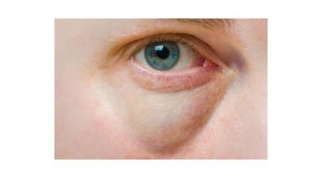 Natural Treatments of Black Circles Under Eye