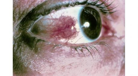 Nodular Scleritis. Redness of the episcleral and scleral layer of the eye with formation of pink to red nodules © 2019 American Academy of Ophthalmology