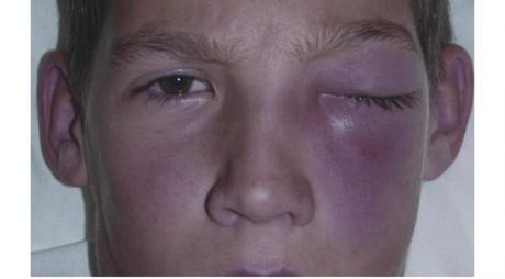 Periorbital Cellulitis © 2019 American Academy of Ophthalmology