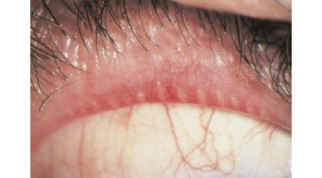 Posterior Blepharitis with Meibomian gland dysfunction© 2019 American Academy of Ophthalmology