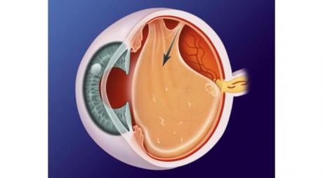 Posterior Vitreous Detachment . Vitreous is detached from the retina © 2019 American Academy of Ophthalmology