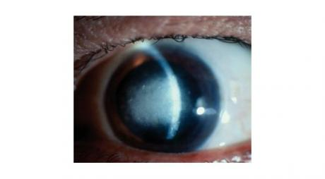 Stromal Herpetic Keratitis with central corneal opacity and corneal edema