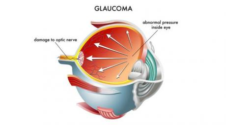 Treatments of Glaucoma