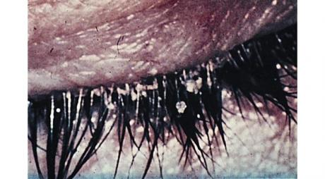 When to seek medical advice if you have Blepharitis? © 2019 American Academy of Ophthalmology