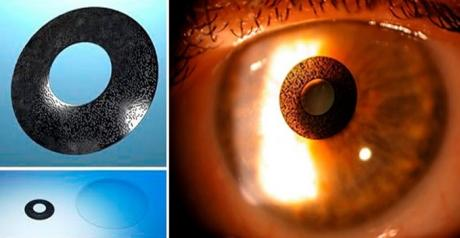 Intrastromal Corneal Inlays, New Presbyopia Surgery