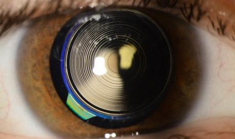 Presbyopia Surgeries with Multifocal intraocular lens