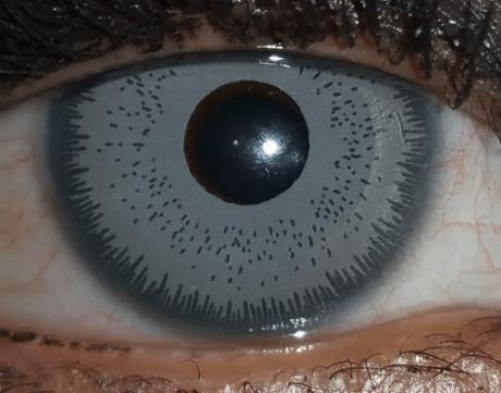 Eye color change surgery with cosmetic artificial iris implant