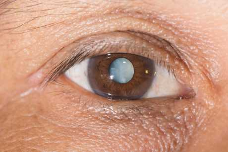 Definition of Cataract