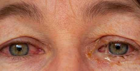 bacterial conjunctivitis in both eyes. Purulent discharge in left eye