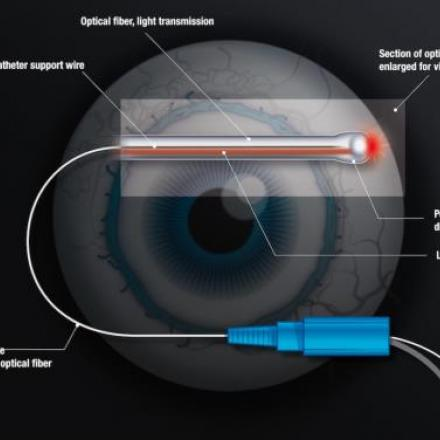 ABiC Glaucoma Procedure. itrack diaghram