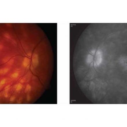 Birdshot Chorioretinopathy. Multiple subretinal white spots that radiate from optic disc© 2019 American Academy of Ophthalmology