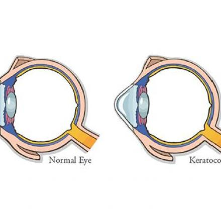 Causes of Keratoconus