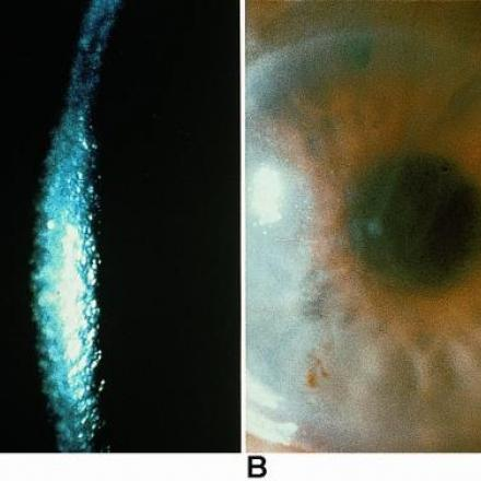 Fuchs Endothelial Dystrophy. Corneal edema in patients with Fuchs Endothelial Dystrophy © 2019 American Academy of Ophthalmology
