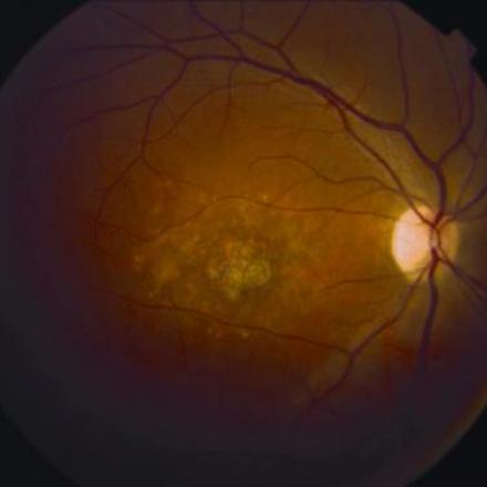 Macular Dystrophy in Stargardt Disease © 2019 American Academy of Ophthalmology