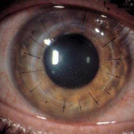 New therapy for improving Corneal Graft Survival in Corneal Transplant rejection © 2019 American Academy of Ophthalmology