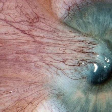 Pterygium Removal. This large recurrent pterygium occurred after surgical pterygium removal © 2019 American Academy of Ophthalmology