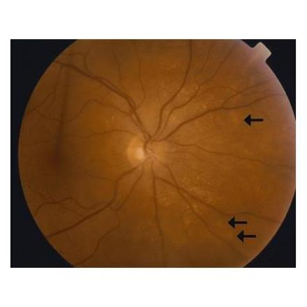 Sympathetic Ophthalmia with Dalen Fuchs nodules or hypopigmented lesions © 2019 American Academy of Ophthalmology