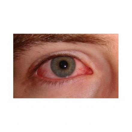 Symptoms of Pink Eye