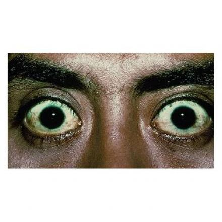 Thyroid eye disease with proptosis or exophthalmos. © 2019 American Academy of Ophthalmology