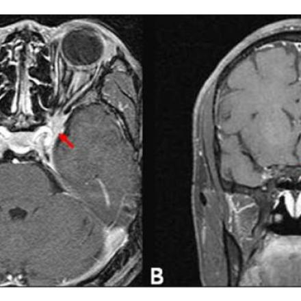 Tolosa Hunt Syndrome is a rare idiopathic, non specific granulomatous inflammation of the cavernous sinus and/or superior orbital fissure