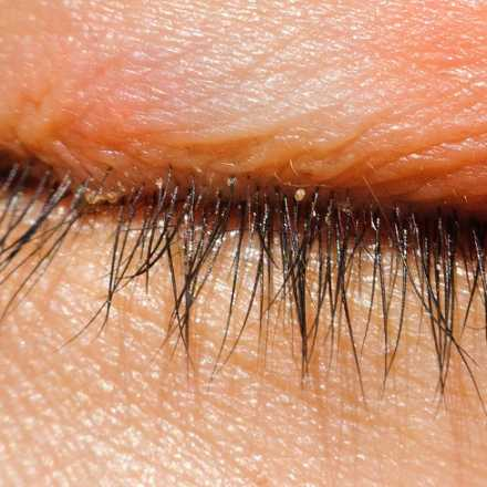 Treatments of Blepharitis