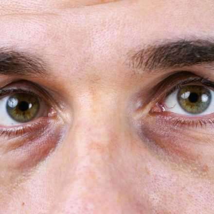 Causes of dark Circles Under Eyes