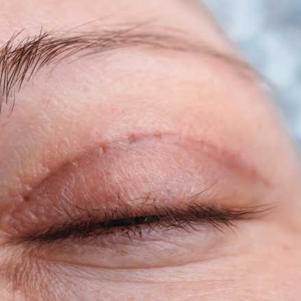 Eye Lift and Blepharoplasty