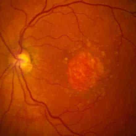 New treatment for Dry Macular Degeneration